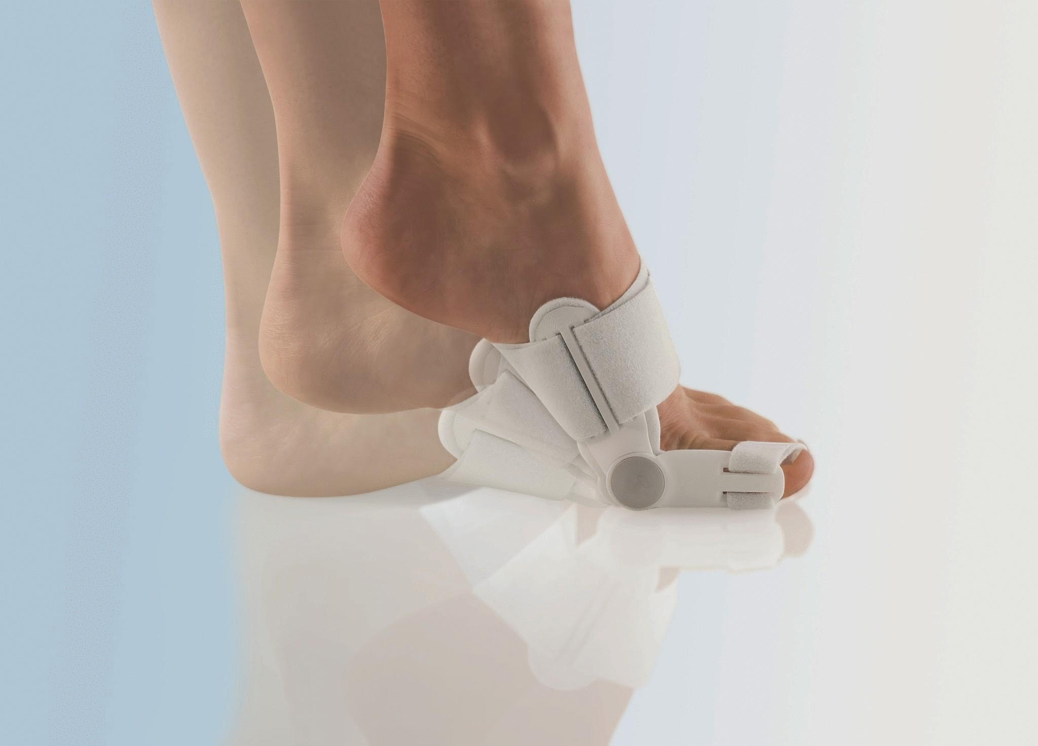 Лечение косточки большого пальца ноги народными средствами