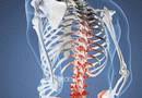 Зажатые нервные корешки - Бизнес… и ничего личного?