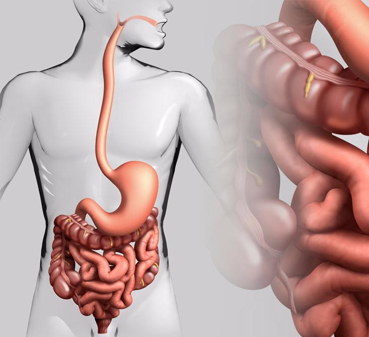 Болезни кишечника в картинках