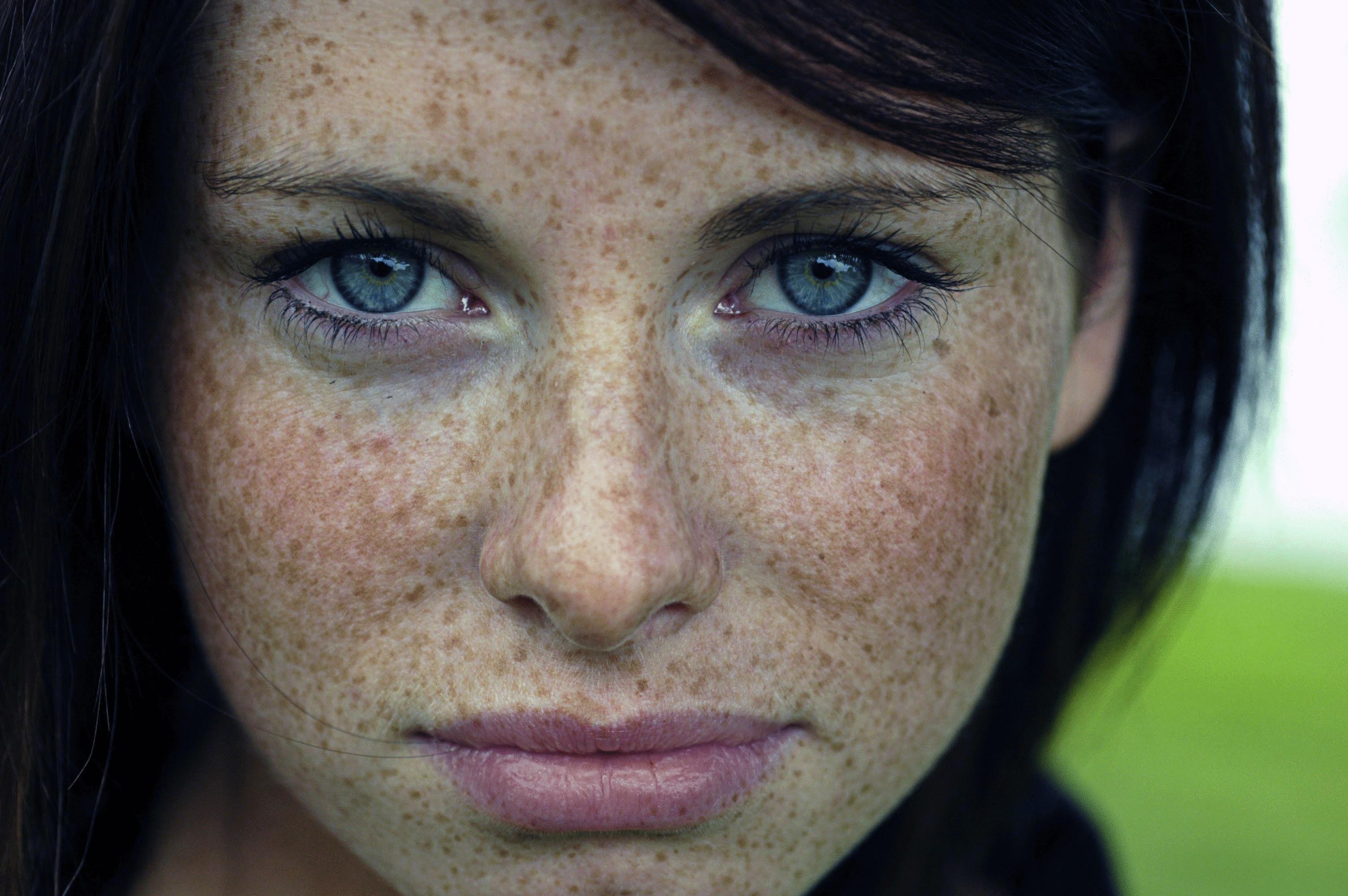 У девочки покраснение на писе 16 фотография