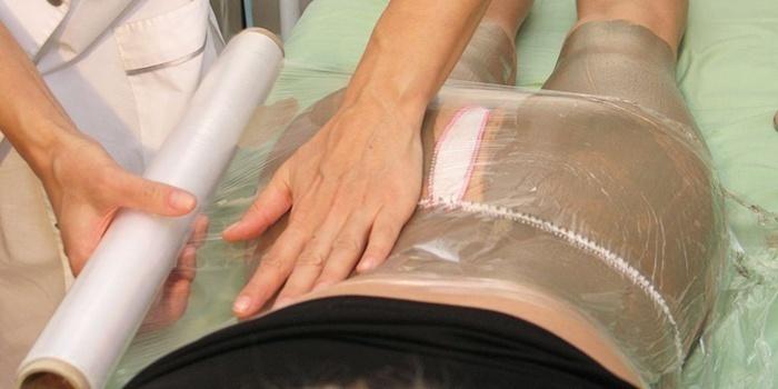 Обертывания против целлюлита в домашних условиях с отзывами
