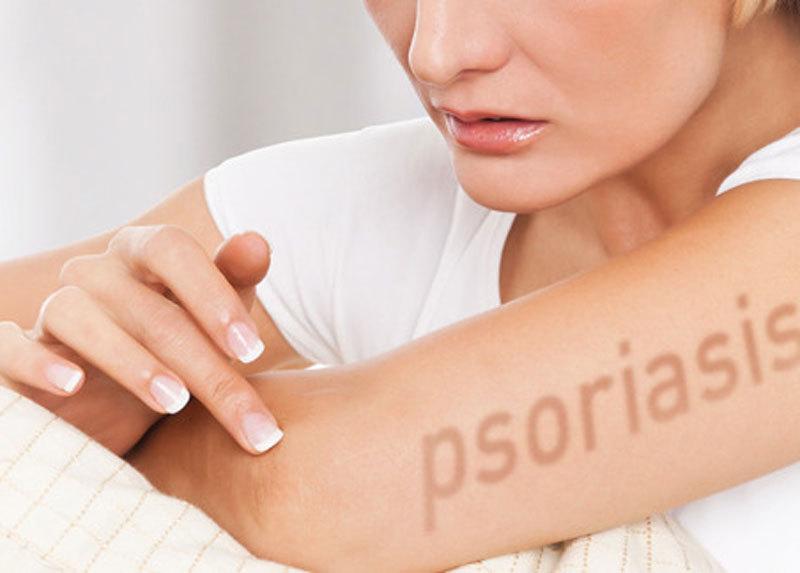 Эффективное лечение голодом псориаза и других заболеваний кожи