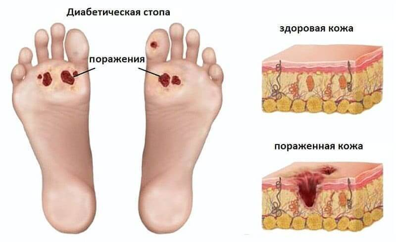 Лечение при диабетическом поражении суставов препарат для лечения суставов аптека