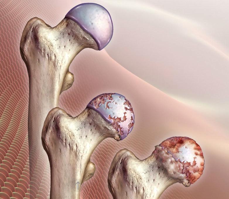 Ограниченная подвижность суставов при коксартрозе челюстной сустав его мышцы