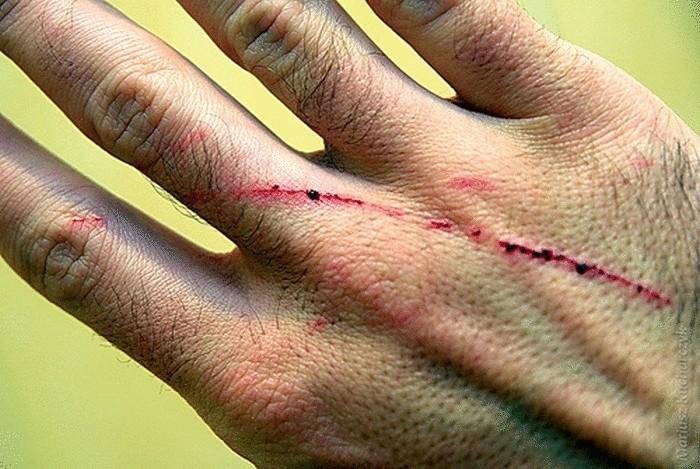Как лечить кошачьи царапины в домашних условиях